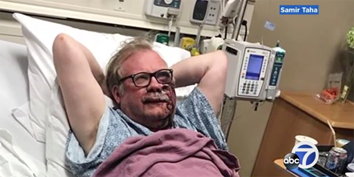 Scott Long of Oakland, California, was beaten with a tire iron from behind